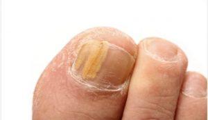 tratamiento para hongos en los pies