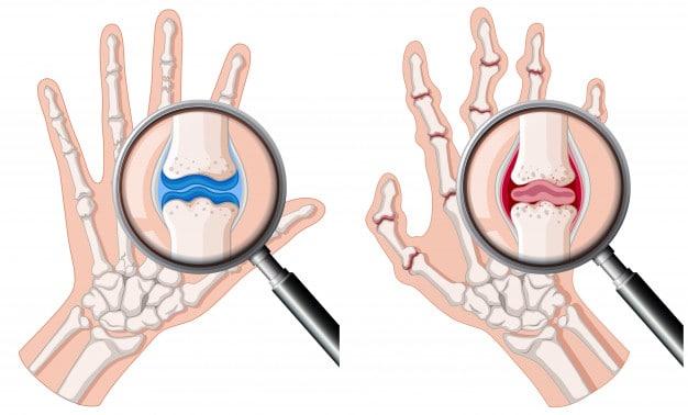 artritis rematoide consecuencias